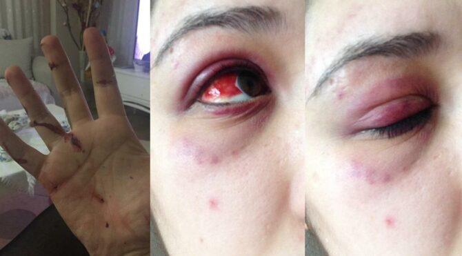 Avukat sevgili genç kızı feci şekilde dövdü
