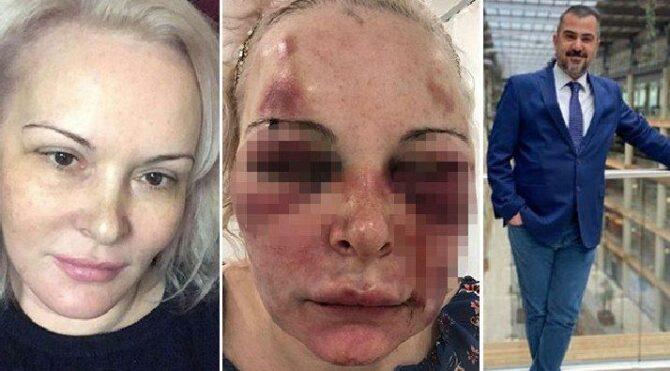 Türk erkek,Rus sevgilisine otelde dehşet dolu anlar yaşattı