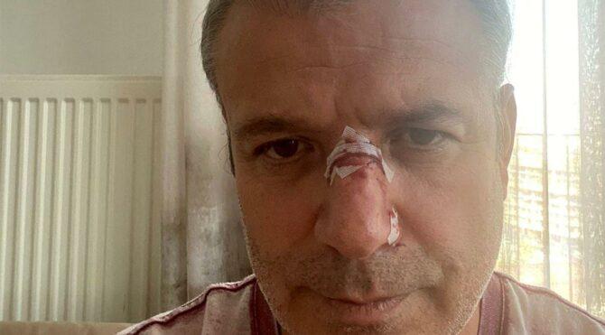 Muayene'de 'Sizi boşa dövmüyorlar' dedi, doktora saldırdı