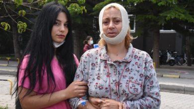 Köpek beslerken saldırıya uğrayan kadın: Sadece Allah'ın sessiz kullarını doyuruyorum