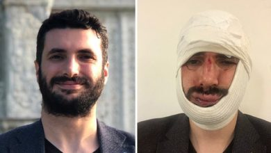 AA muhabiri Ekrem Biçeroğlu'nu öldüresiye dövüp çenesini kıran şahıslar serbest bırakıldı!