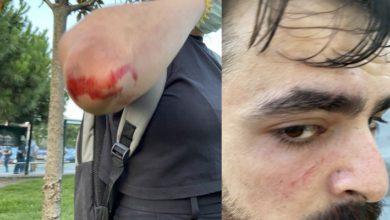 Konya'daki katliamı protesto edenlere Kasımpaşa'da saldırı