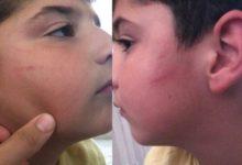 Mersin'de öğretmen şiddeti ,sınıfta dövmüş: Aile şikayetçi oldu